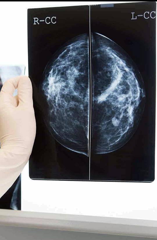 inner-banner-Mammography